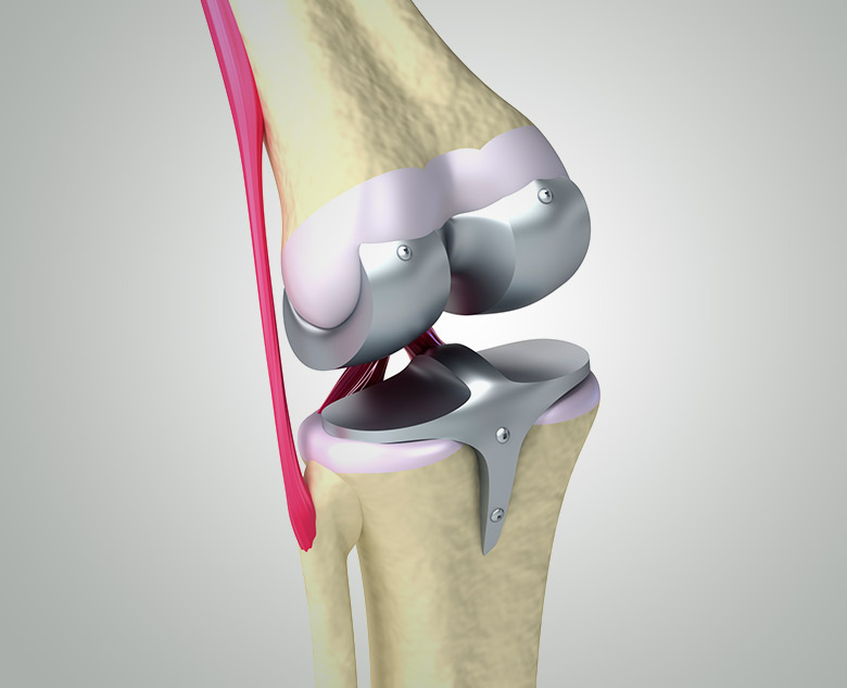Dr Nilen Shah | Joint Replacement Surgeon, Mumbai – Knee and